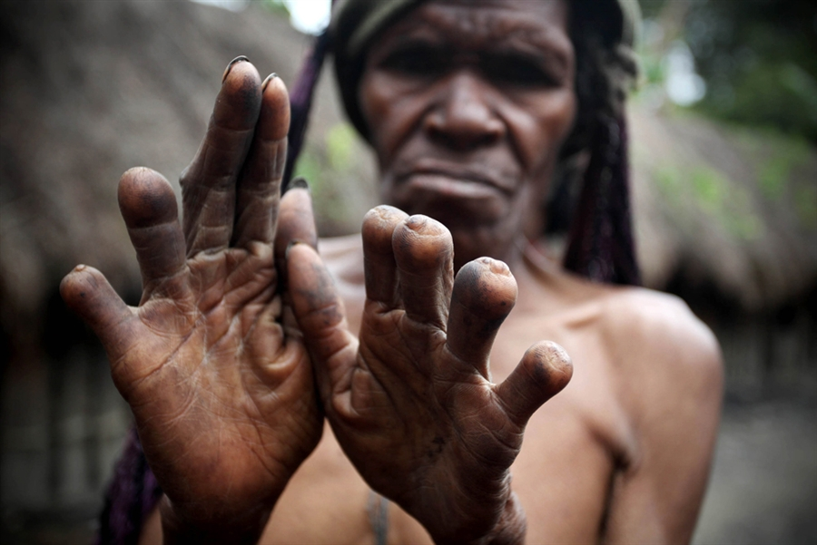 Women Who Cut Their Fingers Off