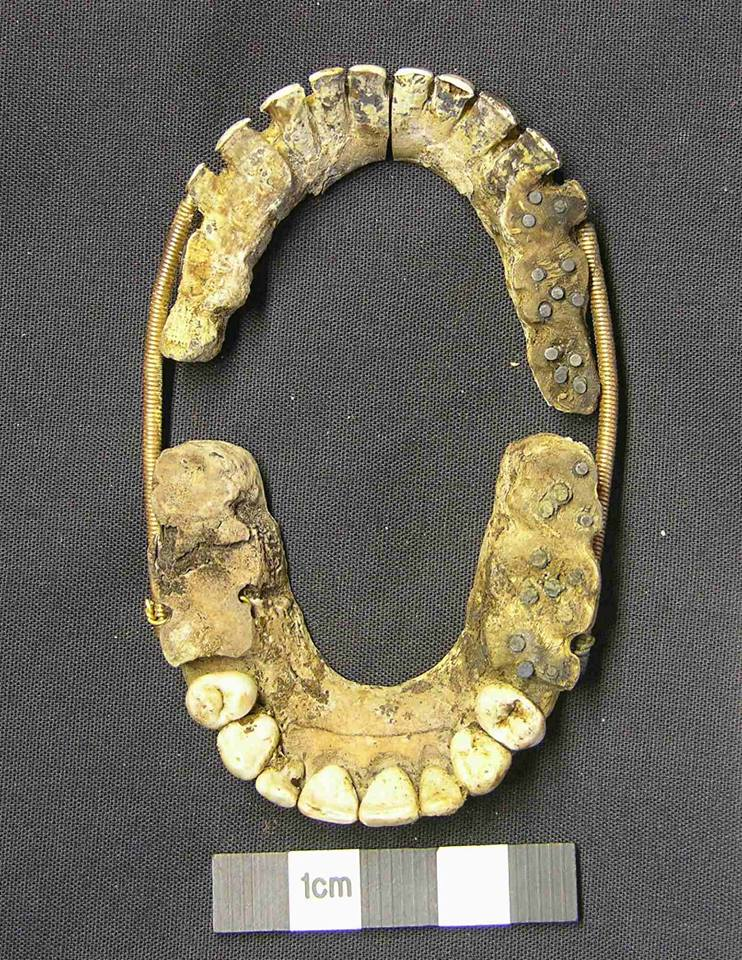 Ever Heard of Waterloo Teeth?