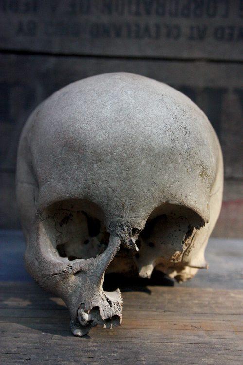 19th Century Human Child Skull