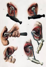 Cabinet of Curiosities – Tooth Extractor & Ivory Dentures