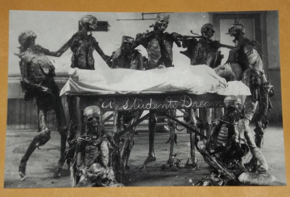 antique-cadaver-1